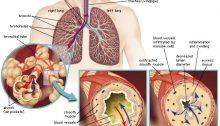 Asma asthma